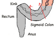 sigmoid colon, kink in sigmoid colon