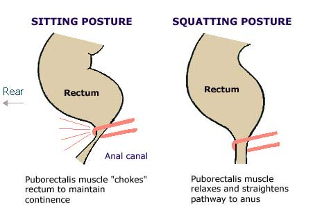 Sitting versus squatting, angle of anal canal in sitting and squatting positions